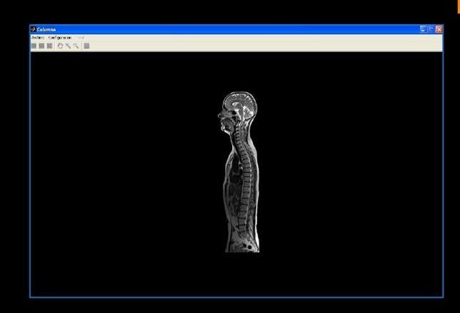 La informática aplicada al diagnostico de patologías de la columna