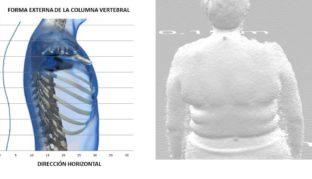 Toma de medidas antropométricas, registro de la forma externa de la columna vertebral y de la forma 3d de la espalda