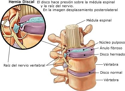 Diagrama de una protrusión discal